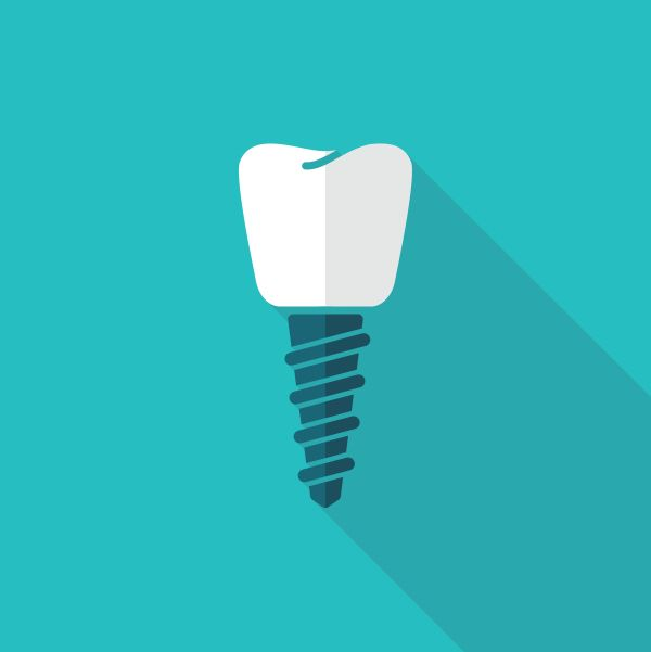 Dental Implant As An Alternative To Dental Bridge